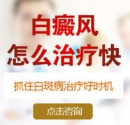 云南白斑病医院:治疗手臂白癜风